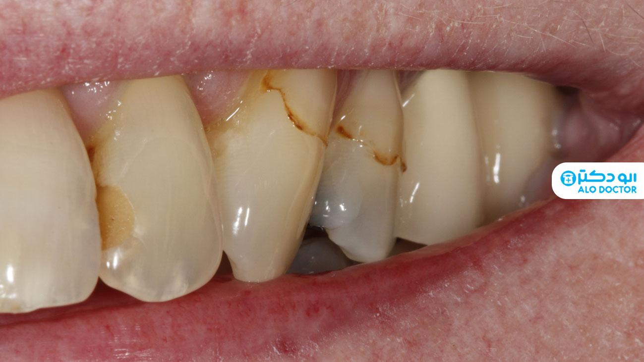 راه های از بین بردن لکه های روی دندان در خانه