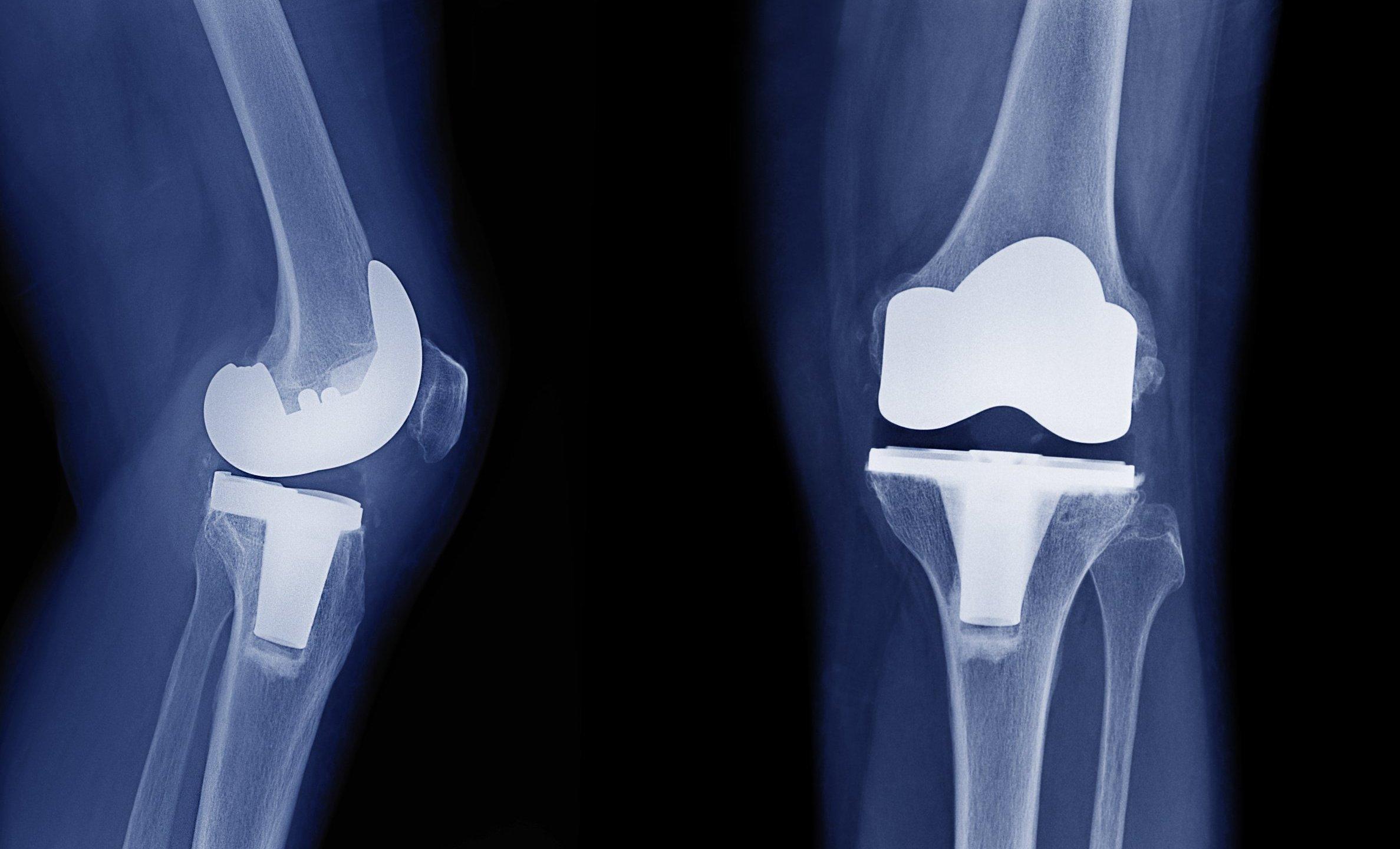 دانستنی های مهم و ضروری درباره جراحی تعویض مفصل زانو