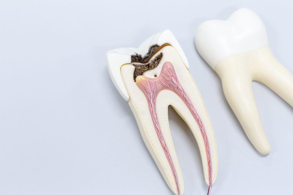 عفونت ریشه دندان ؛ علائم، علت درمان و جلوگیری از آن