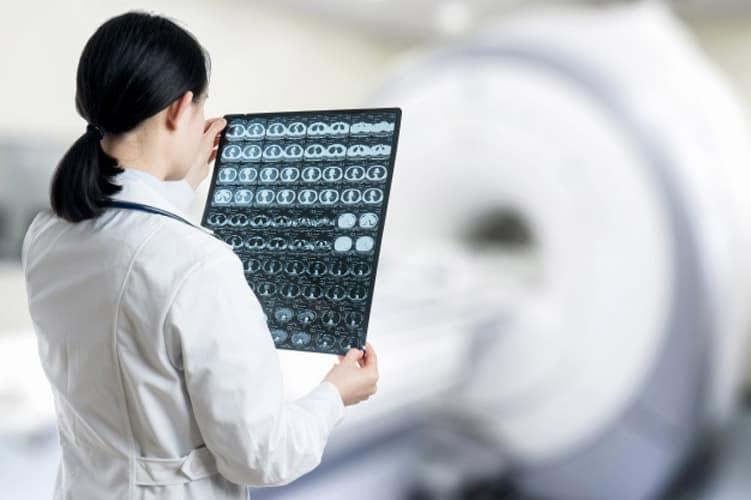 پی جو مرجع معرفی پزشکان متخصص مغز و اعصاب