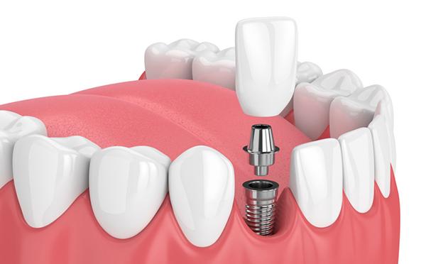 ایمپلنت و لمینت دندان چیست؟