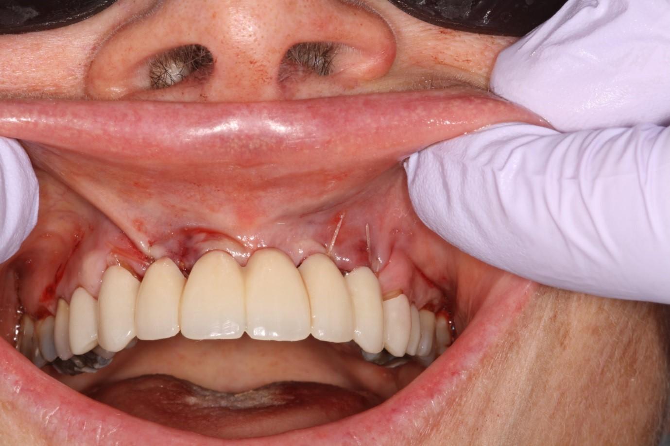 چگونگی پیوستن ایمپلنت دندانی به استخوان فک