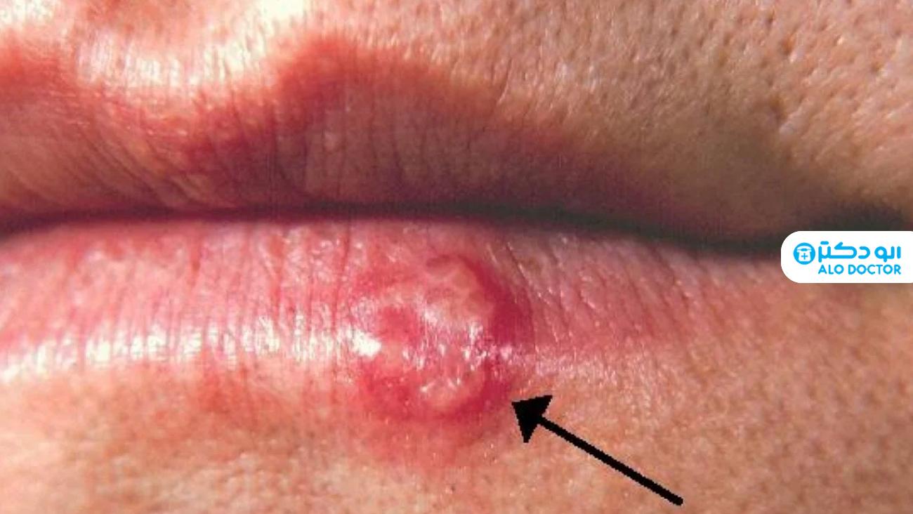 ویروس جنسی هرپس سیمپلکس چیست؟