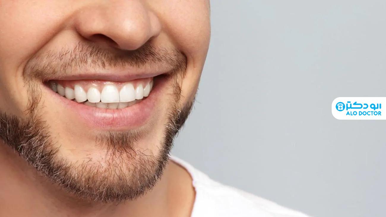 سفید کردن دندان ها با ساده ترین روش های خانگی