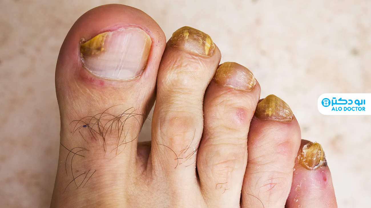 درمان های خانگی برای قارچ ناخن پا