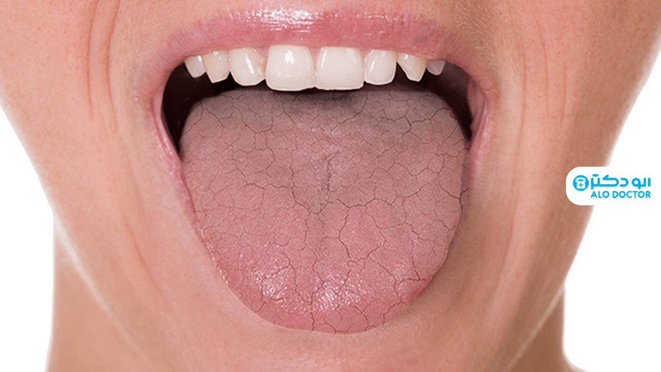 علت خشکی دهان / علائم آن چیست؟