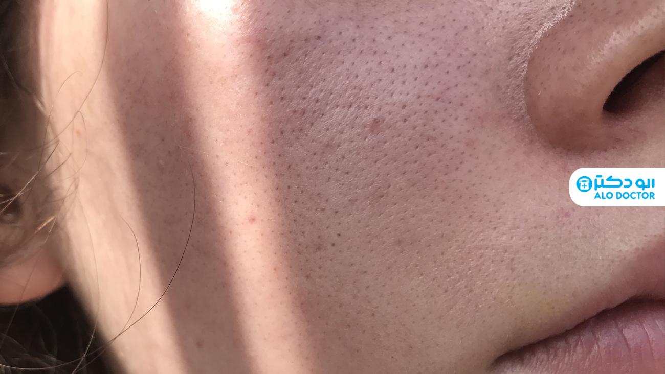 علت ایجاد حفره روی پوست چیست؟