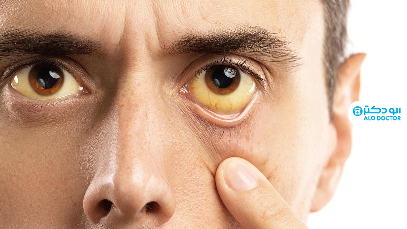 علائم بیماری های کبد