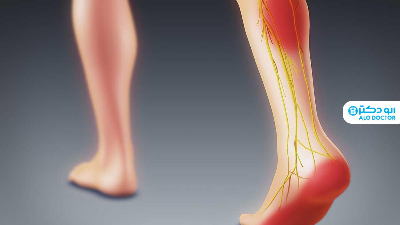 درد سیاتیک چیست؟/ علائم و راه های جلوگیری از آن را بشناسید
