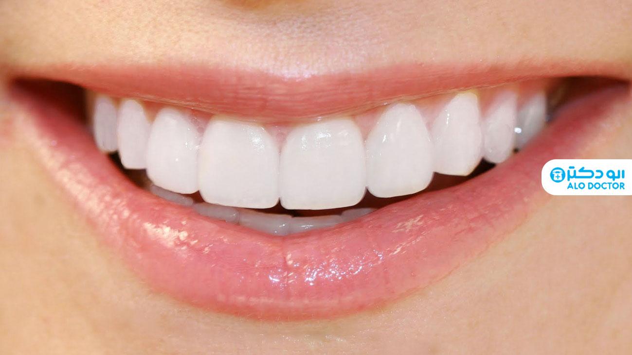 با انواع لمینیت دندان آشنا شوید