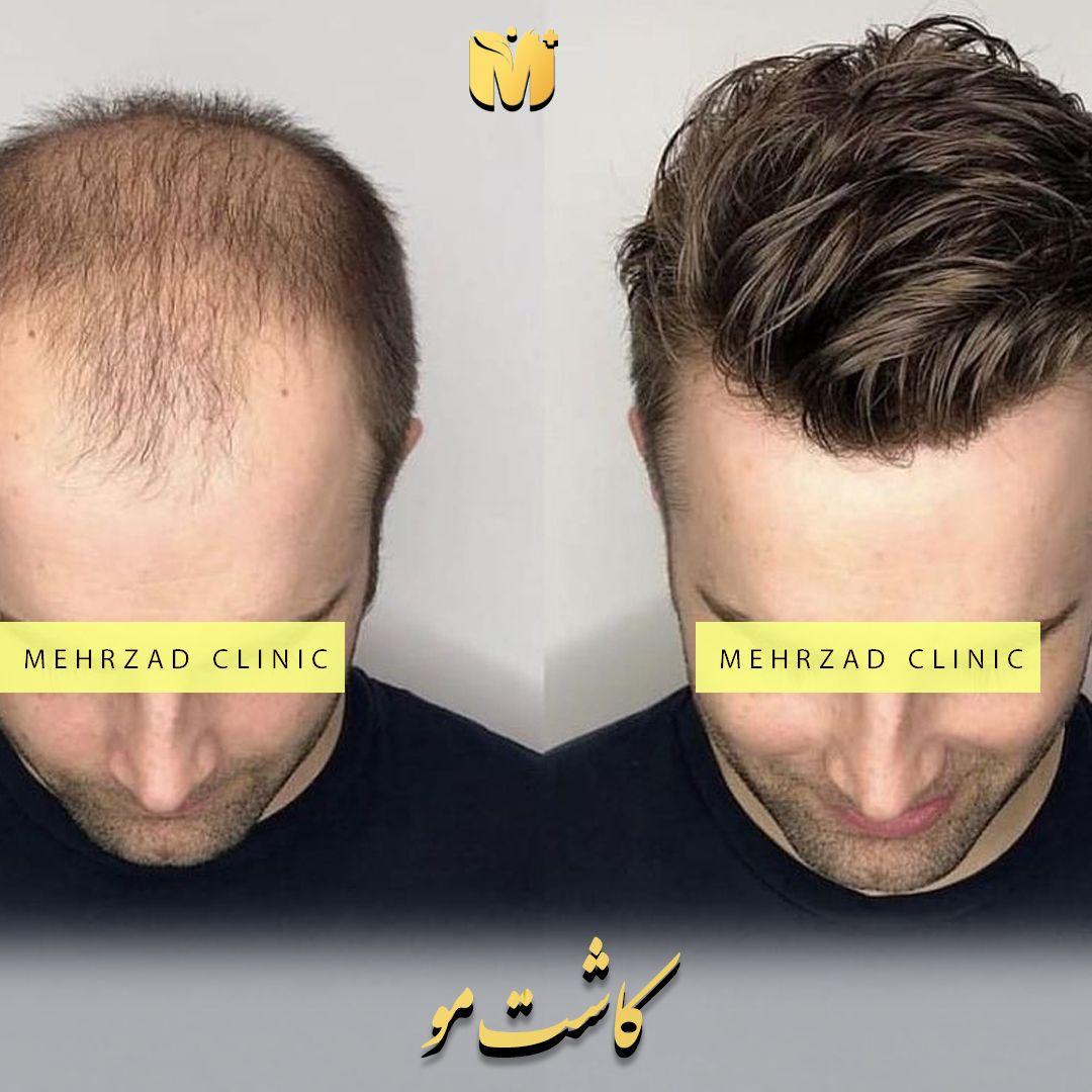 کاشت مو با تراکم بالا چیست ؟ / تعرفه کاشت مو با تراکم بالا چگونه محاسبه  می شود؟