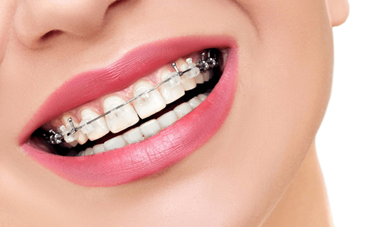 آیا می توان فقط دندان های یک فک را ارتودنسی کرد؟