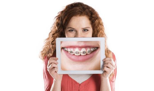 مراحل ارتودنسی را توضیح دهید و آيا روش مناسبی برای مرتبسازی دندان است؟