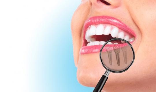 ایمپلنت به چه صورت انجام میگیرد و انواع روکشهای دندانی کدامند؟