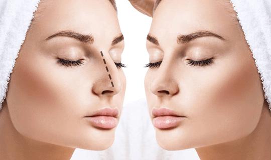 جراحی بینی استخوانی و گوشتی