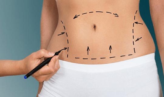 انواع جراحی های شکم برای لاغری