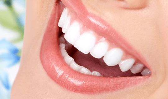 کامپوزیت یا لمینیت، کدام روش برای زیبایی دندانها مناسب است؟
