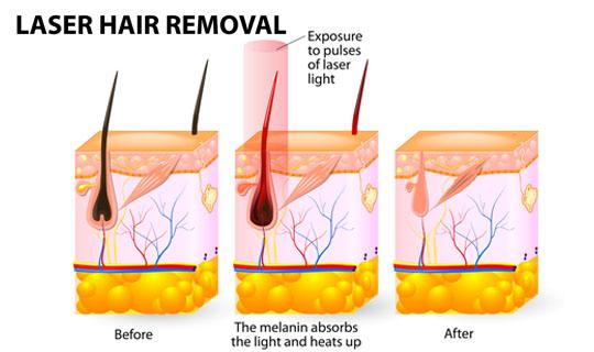 لیزر موهای زائد چه عوارضی دارد آیا به اندازه تبلیغاتی که در این مورد انجام می شود موثر است؟