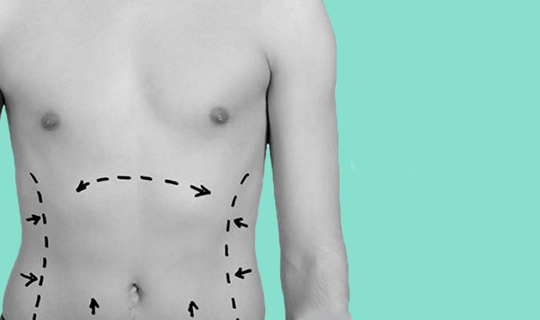 مزایای جراحی شکم یا آبدومینوپلاستی چیست؟