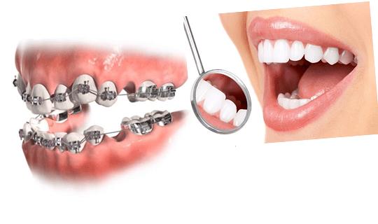 برای درمان ارتودنسی کشیدن دندان ها الزامی است؟