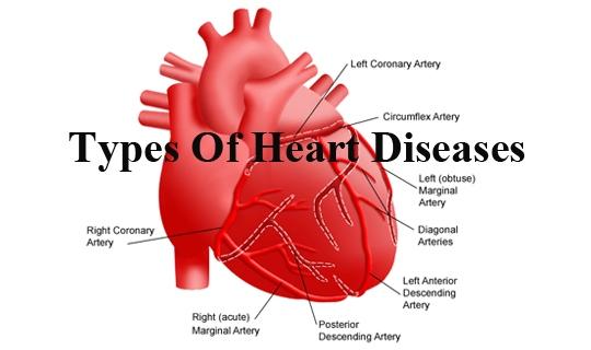 شایعترین بیماری های قلبی کدامند؟