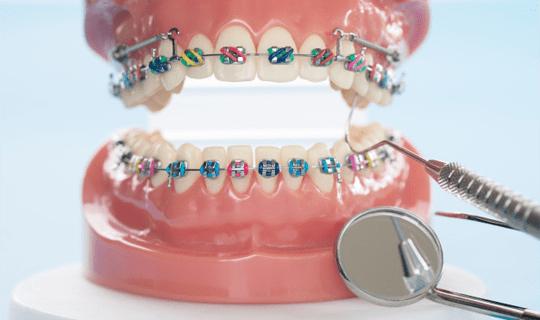 ارتودنسی دندان و نکاتی در مورد آن