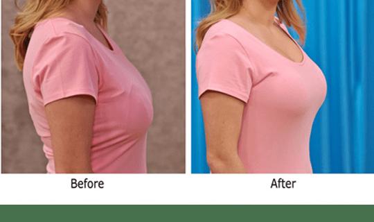 افتادگی سینه در بارداری و درمان آن