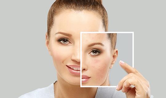 چرا در جوانسازی پوست باید از روش های ترکیبی استفاده کنیم؟