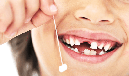 دندانهای شیری کودکان را بکشیم یا حفظ کنیم؟