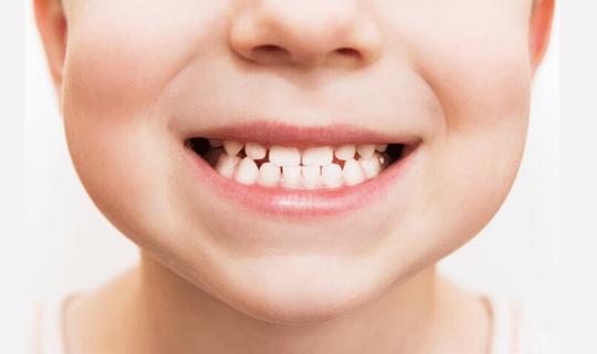 علت و عوارض و درمان دندان قروچه چیست؟