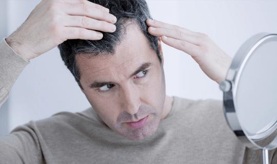 درمان ریزش مو از کدام روش بهتر است استفاده شود؟