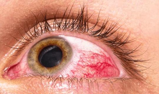 کنترل فشار چشم از چه طریقی انجام می شود؟