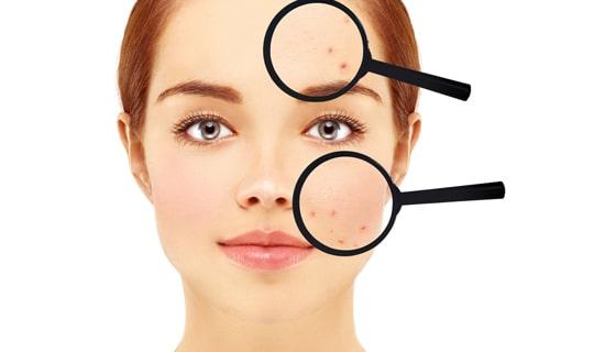 روشی مفید و موثر برای رفع جای لک، آکنه و جوان سازی پوست