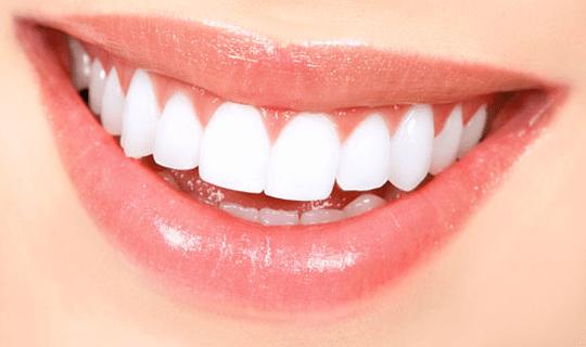 برای انجام لمینیت چه زمانی نیاز به تراش دندان هاست؟