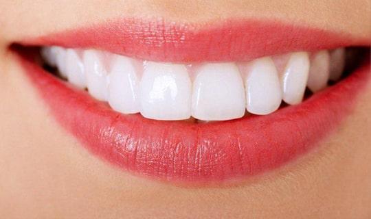 در علم دندانپزشکی کامپوزیت بهتر است یا لمینیت سرامیکی؟