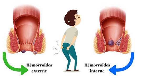 بواسیر، شایع ترین بیماری مقعدی و درمان آن