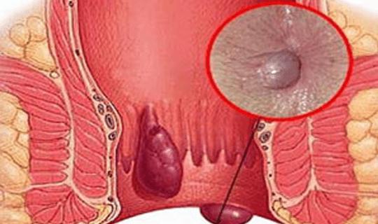 فیستول یا نواسیر چیست و درمان آن چگونه است؟