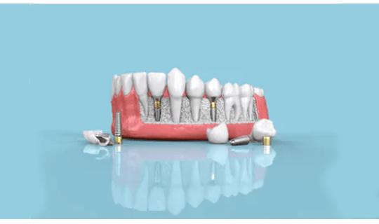 ایمپلنت، بهترین روش برای جایگزینی دندان از دست رفته