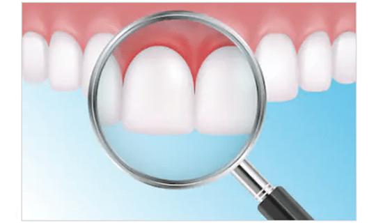 بیماری های لثه و ساختارهای نگهدارنده دندان