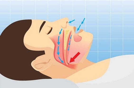 وقفه تنفسی حین خواب (آپنه) و درمان آن